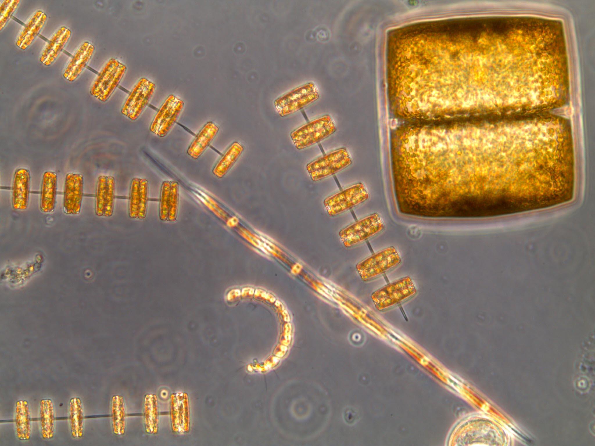 Células de diatomeas observadas al microscopio. Imagen: Isabel G. Teixeira / CSIC