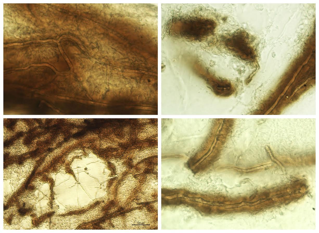 Micrografías que muestran el proceso de respuesta inmune contra Aphanomyces astaci. Foto: Laura Martín-Torrijos. (Imagen: RJB)